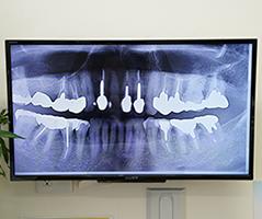 歯周病の治療2